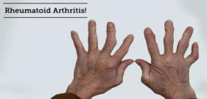 Arthritis-Causes
